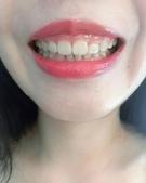 水雷射牙齦整形 ★香港女孩的美麗秘密★ Cynthia:IMG_5057.jpg