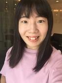 水雷射牙齦整形 ★如何讓甜美女孩找回失去的笑容★小凡:waterlase2.JPG
