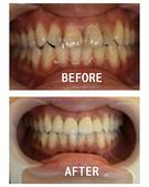 案例分享:全瓷牙冠