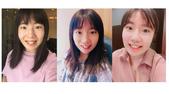 水雷射牙齦整形 ★如何讓甜美女孩找回失去的笑容★小凡:waterlase14.jpg