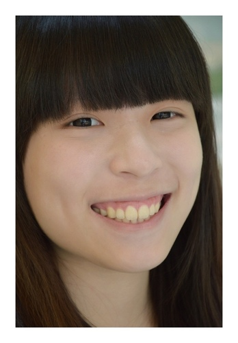 verax-waterlase-160826.jpg - 水雷射牙齦整形 ★ 夢幻校園美女 ★ Nina