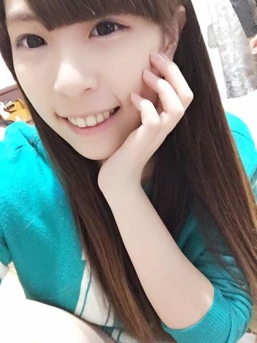 verax-waterlase-160830.jpg - 水雷射牙齦整形 ★ 夢幻校園美女 ★ Nina