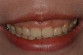 水雷射牙齦整形 ★香港女孩的美麗秘密★ Cynthia:DSC_9384.JPG