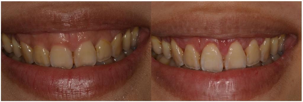 水雷射牙齦整形 ★和牙齦說再見的日子★ Sarsha:未命名-1.jpg