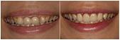 水雷射牙齦整形 ★森林女孩的清新笑容★  彤彤:術前後-1.jpg