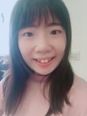 水雷射牙齦整形 ★如何讓甜美女孩找回失去的笑容★小凡:waterlase3.JPG