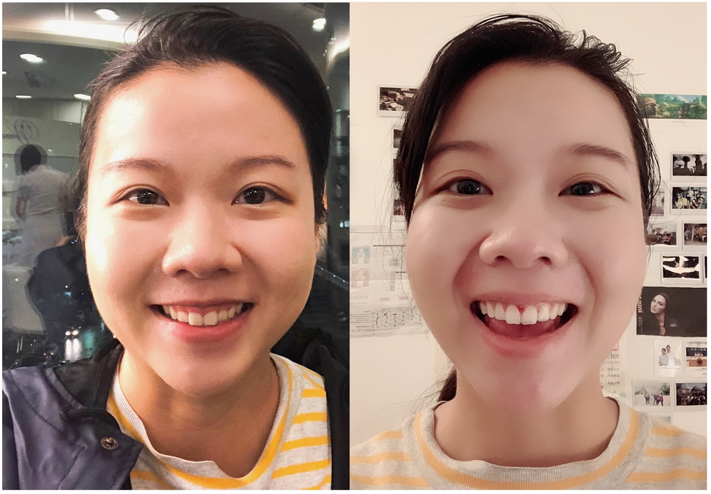 水雷射牙齦整形 ★整牙歲月的終點站★霓霓:未命名-1.jpg