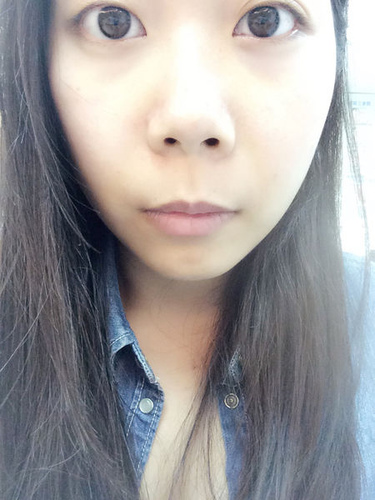 verax-waterlase-160803.jpg - 水雷射牙齦整形 ★ 我的美麗人生 ★ 樂蒂