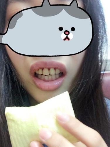 verax-waterlase-160804.jpg - 水雷射牙齦整形 ★ 我的美麗人生 ★ 樂蒂