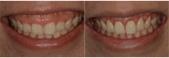 水雷射牙齦整形 ★整牙歲月的終點站★霓霓:b&f.jpg