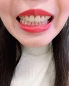 水雷射牙齦整形 ★香港女孩的美麗秘密★ Cynthia:IMG_5471.jpg