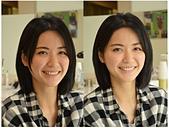 水雷射牙齦整形 ★森林女孩的清新笑容★  彤彤:術後.jpg