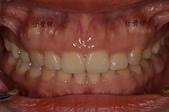 水雷射牙齦整形 ★香港女孩的美麗秘密★ Cynthia:DSC_9385-1.jpg