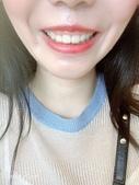 水雷射牙齦整形 ★香港女孩的美麗秘密★ Cynthia:3.jpg