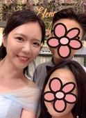 水雷射牙齦整形 ★香港女孩的美麗秘密★ Cynthia:IMG_5767-1.jpg