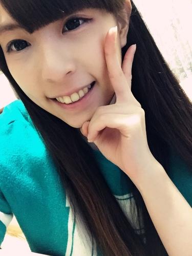 verax-waterlase-160829.jpg - 水雷射牙齦整形 ★ 夢幻校園美女 ★ Nina