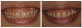 水雷射牙齦整形 ★給人完美的第一印象,就是要和牙齦Say bye bye!!★:verax-waterlase-160916.jpg
