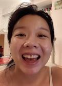 水雷射牙齦整形 ★整牙歲月的終點站★霓霓:6.jpg