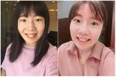 水雷射牙齦整形 ★如何讓甜美女孩找回失去的笑容★小凡:waterlase1.jpg