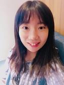 水雷射牙齦整形 ★如何讓甜美女孩找回失去的笑容★小凡:waterlase9.JPG