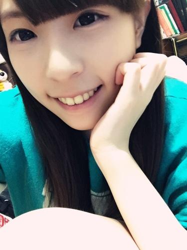 verax-waterlase-160828.jpg - 水雷射牙齦整形 ★ 夢幻校園美女 ★ Nina