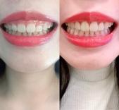 水雷射牙齦整形 ★香港女孩的美麗秘密★ Cynthia:IMG_5472.jpg