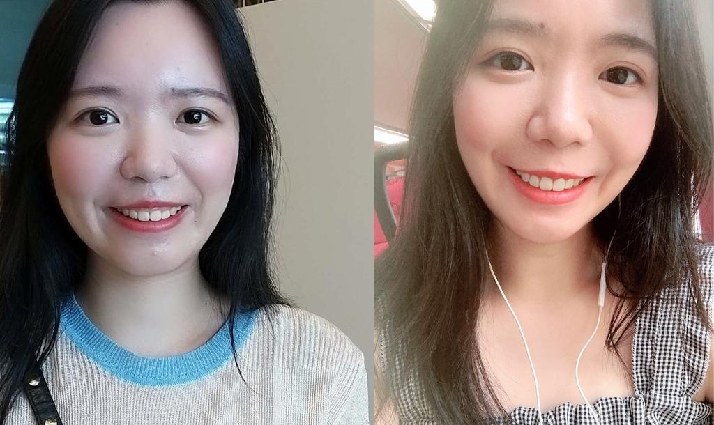 水雷射牙齦整形 ★香港女孩的美麗秘密★ Cynthia:未命名-1.jpg